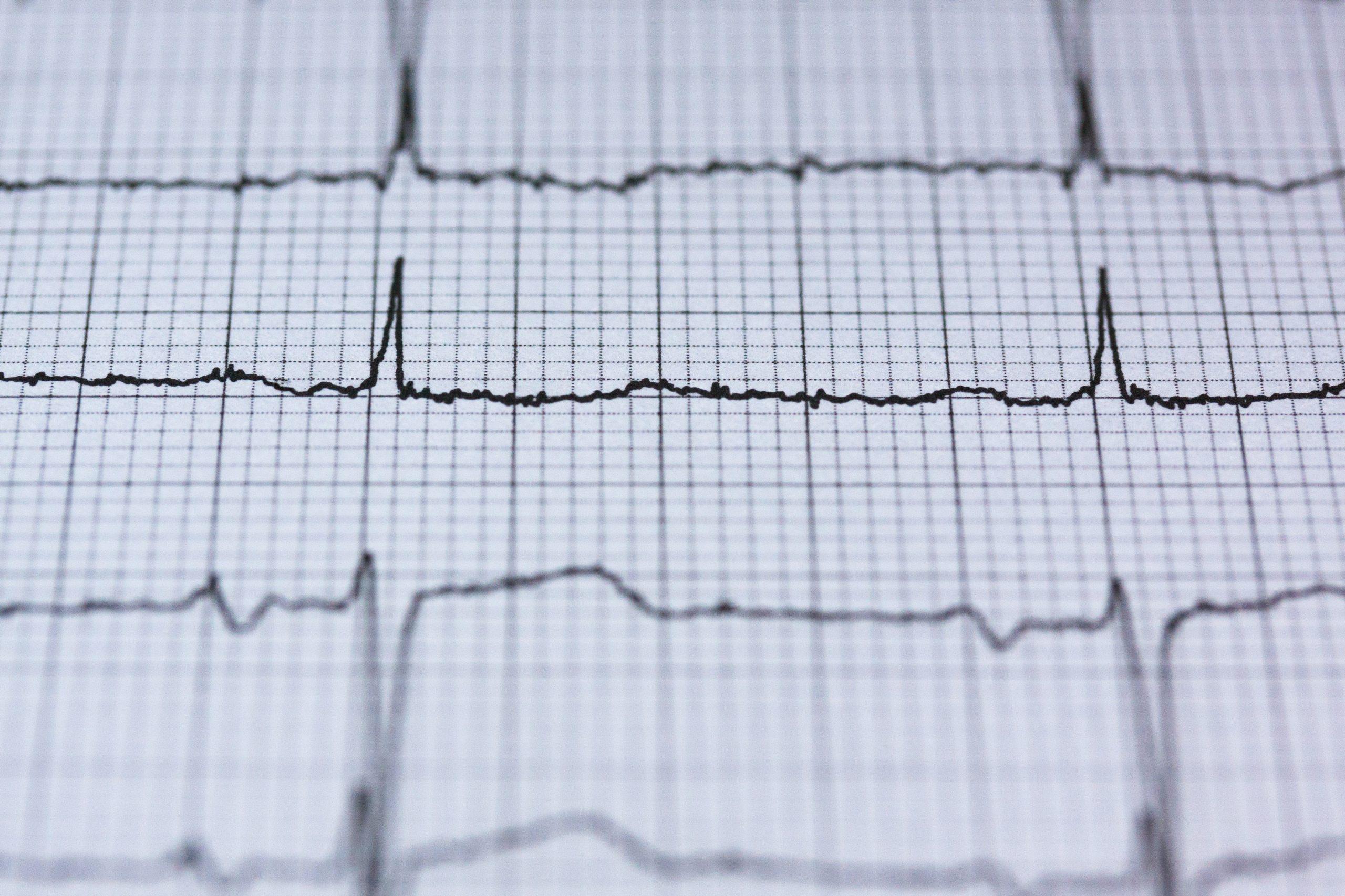 heart disease Pexels.com